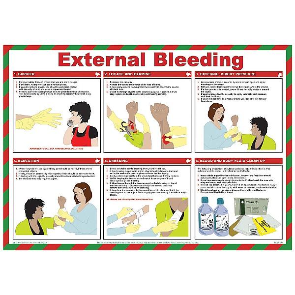 External Bleeding Poster